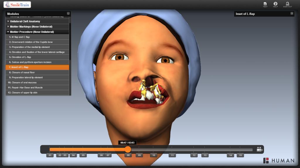 Cleft Surgery Simulation
